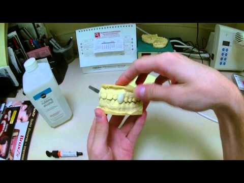 Dentist Makes Professional Movie FX Quality Vampire Fangs