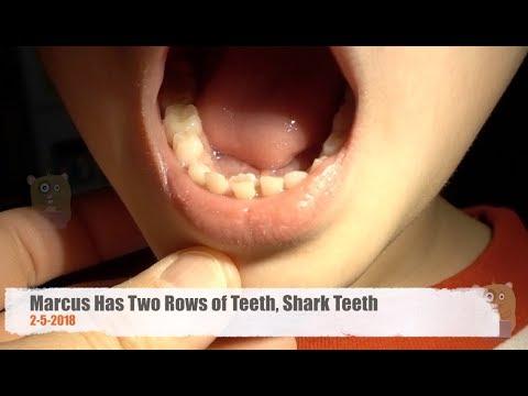 Marcus Has Two Rows of Teeth, Shark Teeth