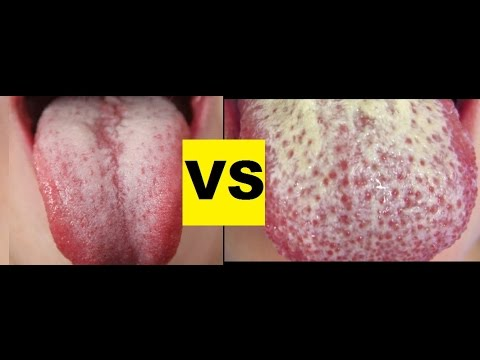 White Coated Tongue vs. Oral Thrush