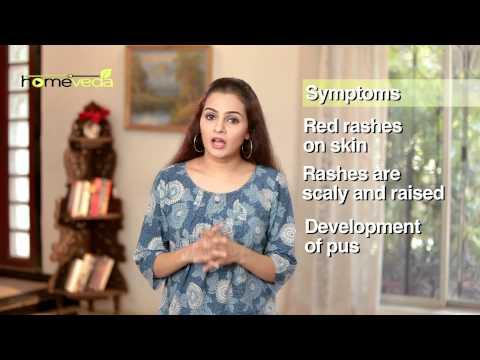 Skin Care - Jock Itch - Natural Ayurvedic Home Remedies