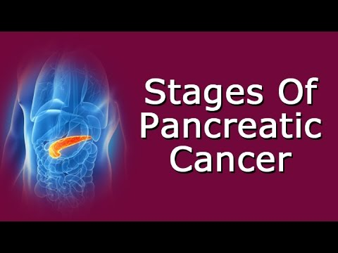 Stages Of Pancreatic Cancer