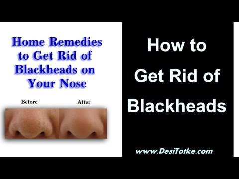 How to Get Rid of Blackheads Quickly - Remove Blackheads 2015