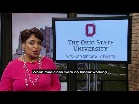 Atrial fibrillation treatment at Ohio State