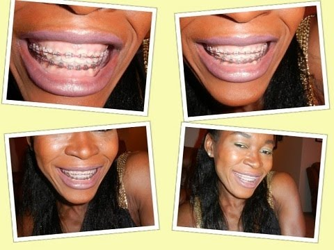 {#109}: MY TEETH WHITENING METHODS ~EVEN WITH BRACES ON