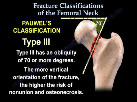 Femoral Neck fracture Classifications - Everything You Need To Know - Dr. Nabil Ebraheim