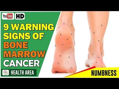 9 Warning Signs of Bone Marrow Cancer