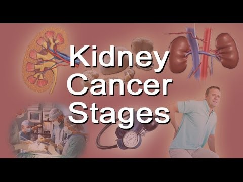 Kidney Cancer Stages
