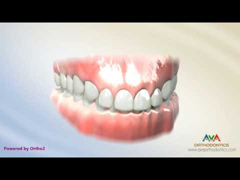 Deepbite Treatment by Reverse Curve of Spee Arch Wire - Orthodontic Treatment
