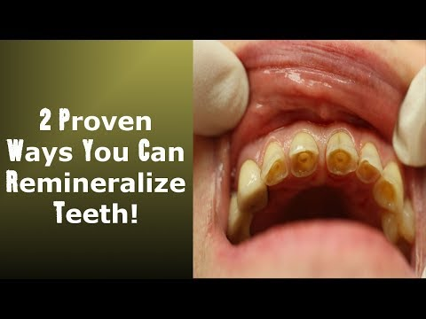 2 Little Known Ways To Achieve Tooth Remineralization: Easy To Implement !
