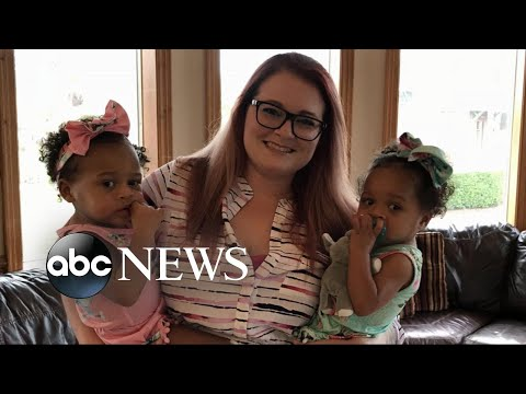 A pediatric nurse in Jacksonville, Florida adopted an abused and malnourished baby