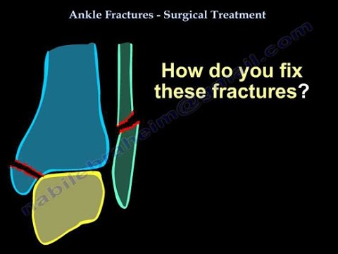 Ankle Fractures, Surgical Treatment ,tactics - Everything You Need To Know - Dr. Nabil Ebraheim