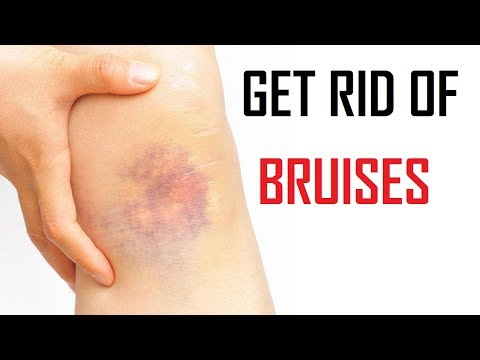 How To Get Rid Of Bruises Naturally At Home