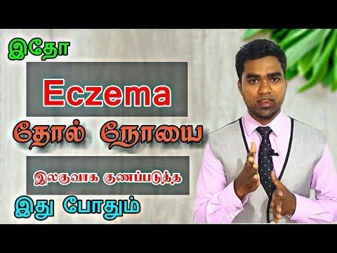 எக்சிமா தோல் நோய்  நீங்க இது போதும் | கரப்பான் நீங்க |  How to cure Eczema in Tamil | Karappan