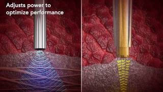 CUSA Clarity Adaptive Power
