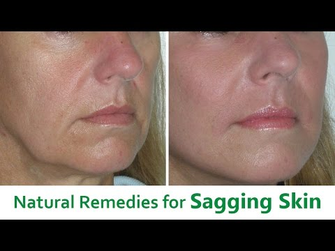 The Best 5 Natural Remedies for Sagging Skin