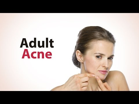 Adult Acne - Treatment & Cause