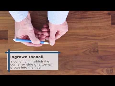 How to Get Rid of Ingrown Toenails