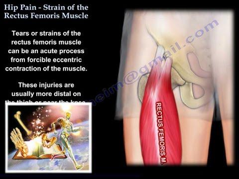 Hip Pain, Strain Of The Rectus Femoris , anatomy - Everything You Need To Know - Dr. Nabil Ebraheim