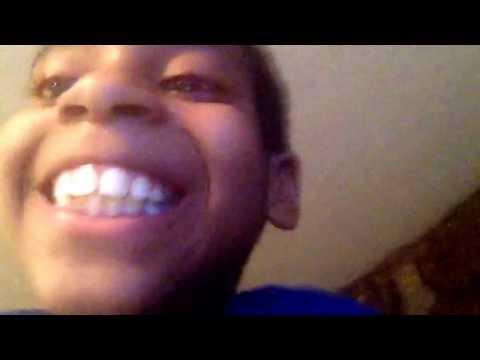 Buck teeth face ever