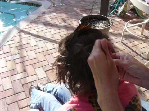 How to Get Rid of Lice #2
