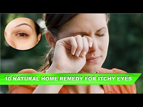 Top 10 Home Remedies for Itchy Eyes | Instant Relief for Watery Eyes