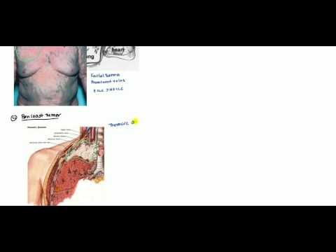 Lung Cancer (Small Cell Lung Carcinoma and Non-Small Cell Lung Carcinoma) for USMLE 2