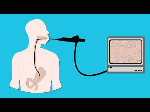Having an endoscopy - Cancer Research UK