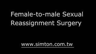 FTM Sexual reassignment surgery