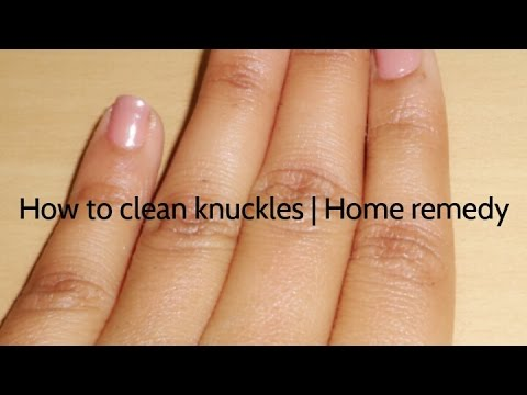 How to clean knuckles | Home remedy |How to lighten dark knuckles