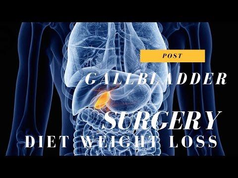 Post Gallbladder Surgery Diet Weight Loss Video 1 of 15