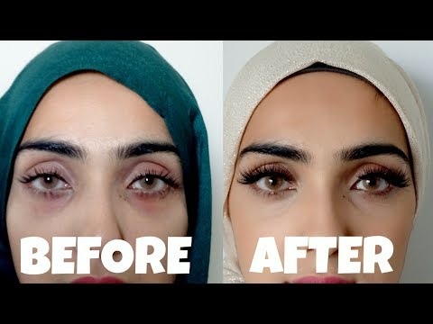 How to Get Rid of Dark Circles and Bags Under Eyes | Natural + Effective ~ Immy