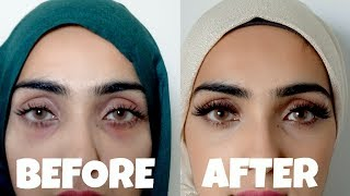 How to Get Rid of Dark Circles and Bags Under Eyes   Natural + Effective ~ Immy