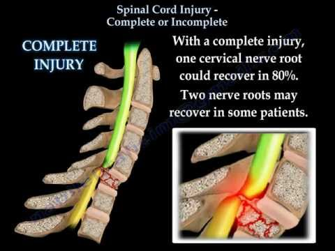 Spinal Cord Injury Complete Or Incomplete - Everything You Need To Know - Dr. Nabil Ebraheim