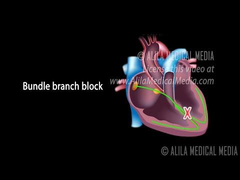 Types of Heart Blocks, Narrated Animation Part 1