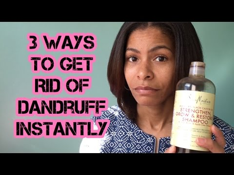 How to get rid of dandruff and scalp eczema | 3 effective ways | ALL TESTED