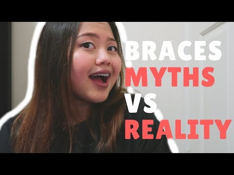 CERAMIC BRACES EXPECTATIONS & REALITY | Is Ceramic Worth It?