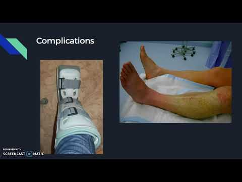 Tibia Stress Fractures