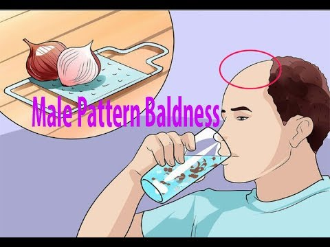How to Treat Male Pattern Baldness | Male Pattern Hair Loss | Hair Loss |
