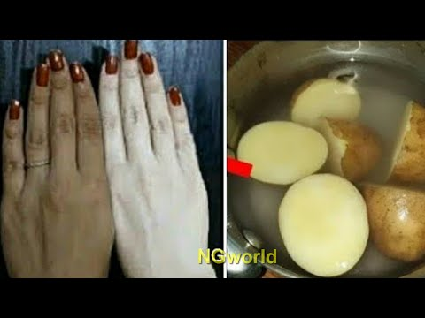 SKIN WHITENING Overnight with Just 1 Simple Ingredient, FAIR, SPOTLESS, GLOWING SKIN ll NGWorld