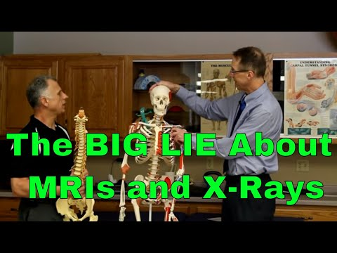 The BIG LIE About MRIs & X-Rays. What You Should Do.