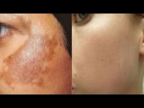 HOME REMEDIES FOR UNEVEN SKIN TONE AND FAIR SKIN
