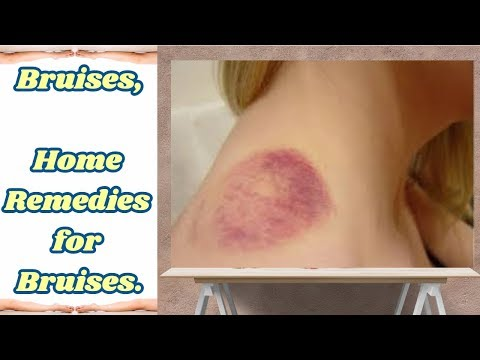 Bruises, 11 Home Remedies for Bruises.
