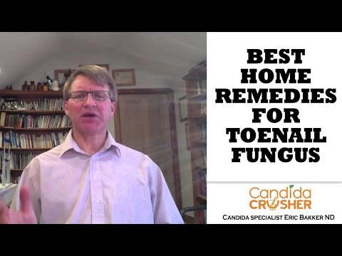Best Home Remedies to Cure Toenail Fungus