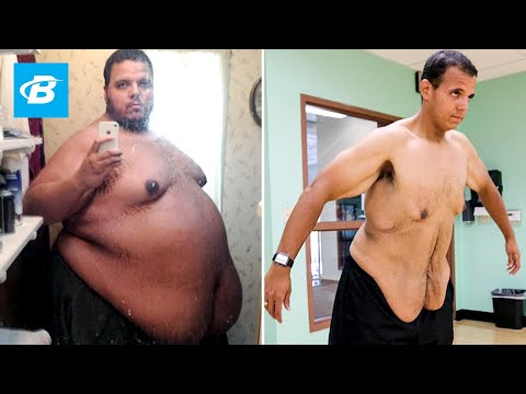 The Incredible Shrinking Man | Jesse Shand Lost 350 Pounds