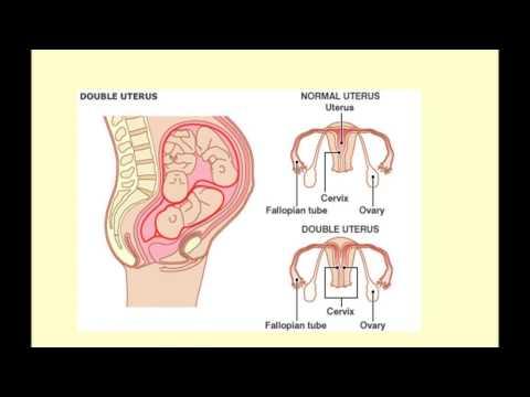 2ww Symptoms After Frozen Embryo Transfer Ivf Update Double