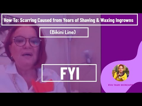 How to Treat Scarring Caused from Years of Shaving & Waxing Ingrowns (Bikini Line)