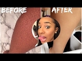 HOW TO GET RID OF INGROWN HAIRS (UPDATE) HOW TO GET RID OF STRAWBERRY LEGS
