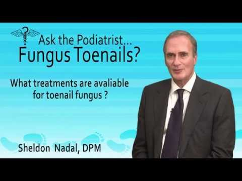 What Treatments May Help Fungal Toenails? Toronto, ON - Podiatrist Sheldon Nadal,
