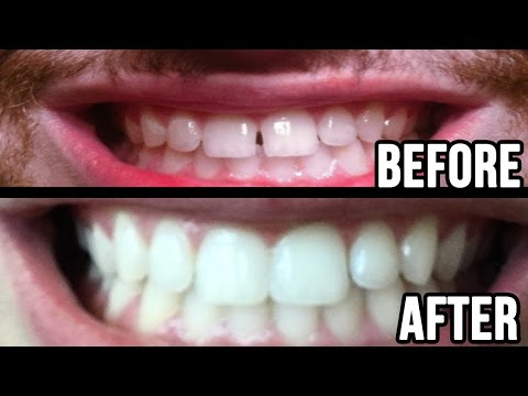 Fixed My Teeth Gap Without Braces! 45MIN WORK!