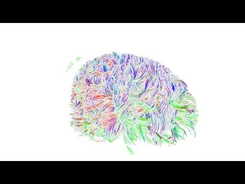 Exploration of the Brain's White Matter Structure through Multi-Scale Local Contraction